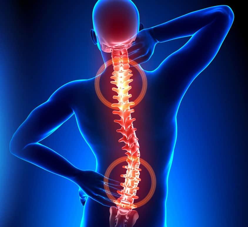 kaklo stuburo osteochondrozė ir hipertenzija
